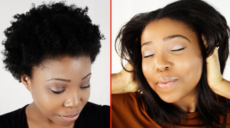 Pictures before and after hair growth treatments