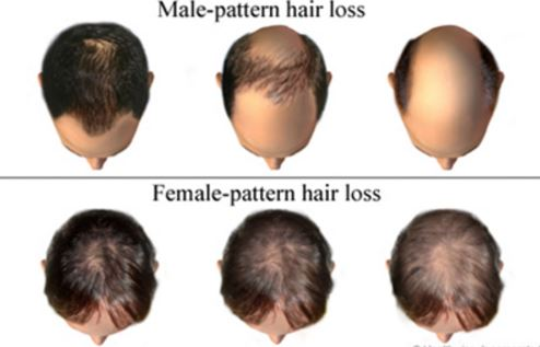 testosterone hair loss in men and women