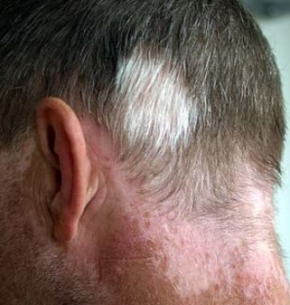 Poliosis and some autoimmune diseases can cause white hair