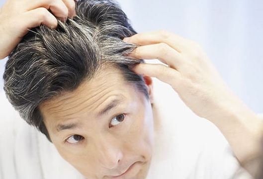 Premature graying hair or premature gray hair causes treatment