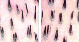 two-hairs-one-follicle-or-multiple-hairs-in-one-follicle