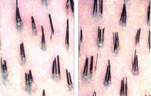 Photo of Dealing with Two/Multiple Hairs in One Follicle