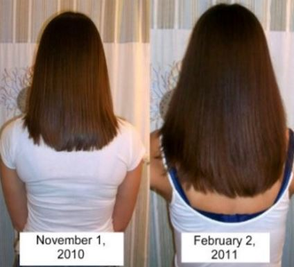 Before and after pictures monistat for hair growth