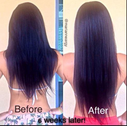 Folic acid before and after photos hair growth