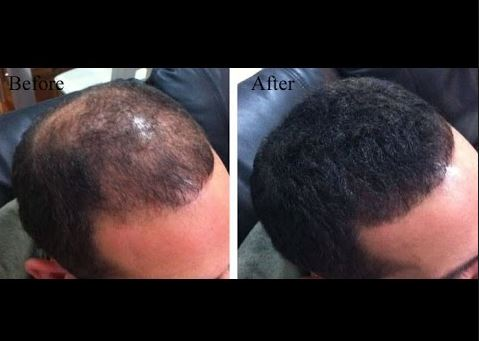Hair regrowth with onion juice before and after pictures