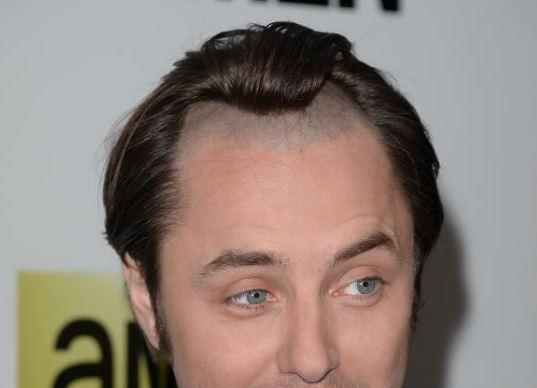 How To Stop A Hairline From Receding