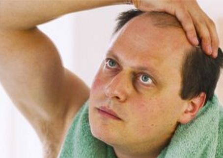 Hair loss can cause hair to start receding in men