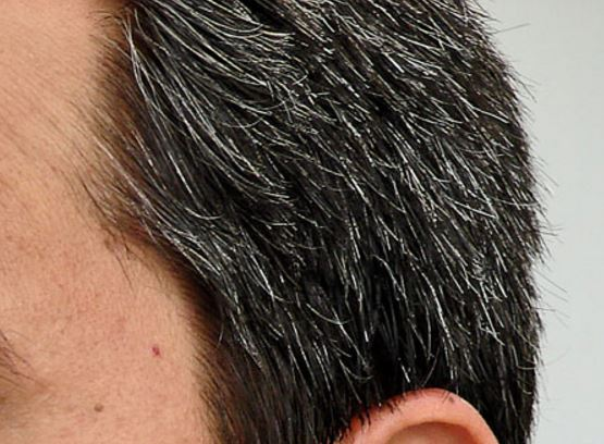 How to get rid of white hair permanently