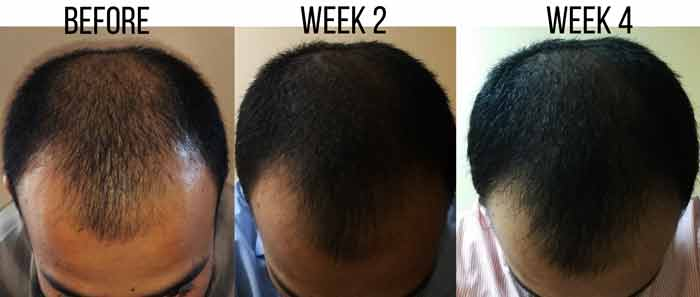 Morrocan Organic Argan oil before and after-Men
