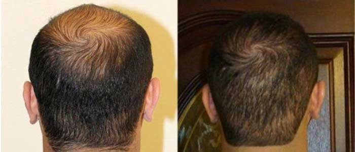 Beta Sitosterol Hair Loss Dosage With Saw Palmetto