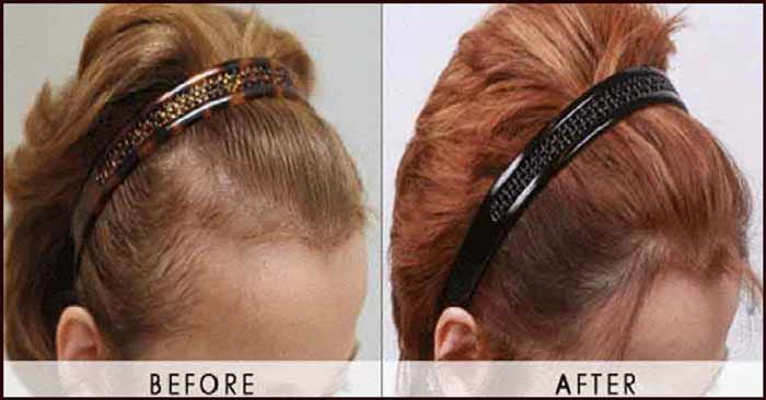 jojoba oil hair results-before and after