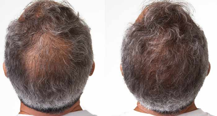 nioxin before after results men
